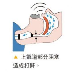 打鼾(打呼)是睡眠時身體發出的警訊!要小心睡眠呼吸中止症《小信號防萬病》